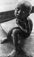 Tragedia vergonzosa que en el mundo actual un quinto de la humanidad padezca hambre